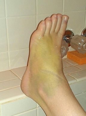 my broken green foot